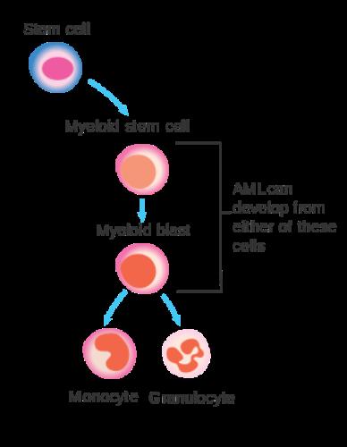 AML Cancer