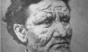 Leprosy Pic