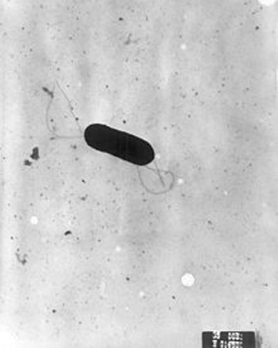 Facts about Listeria