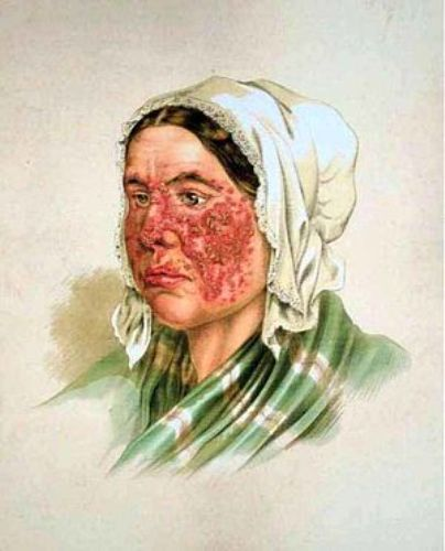 Facts about Lupus