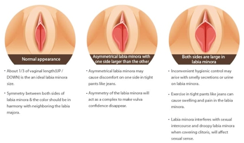 facts about labia minora