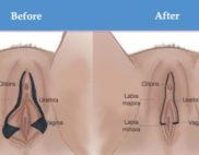 facts about labiaplasty
