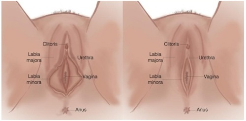 labiaplasty facts