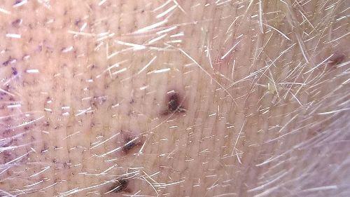 Leeches Bites